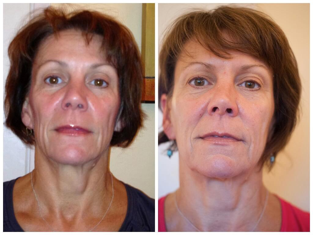 Age 53, before/after 10 sessions