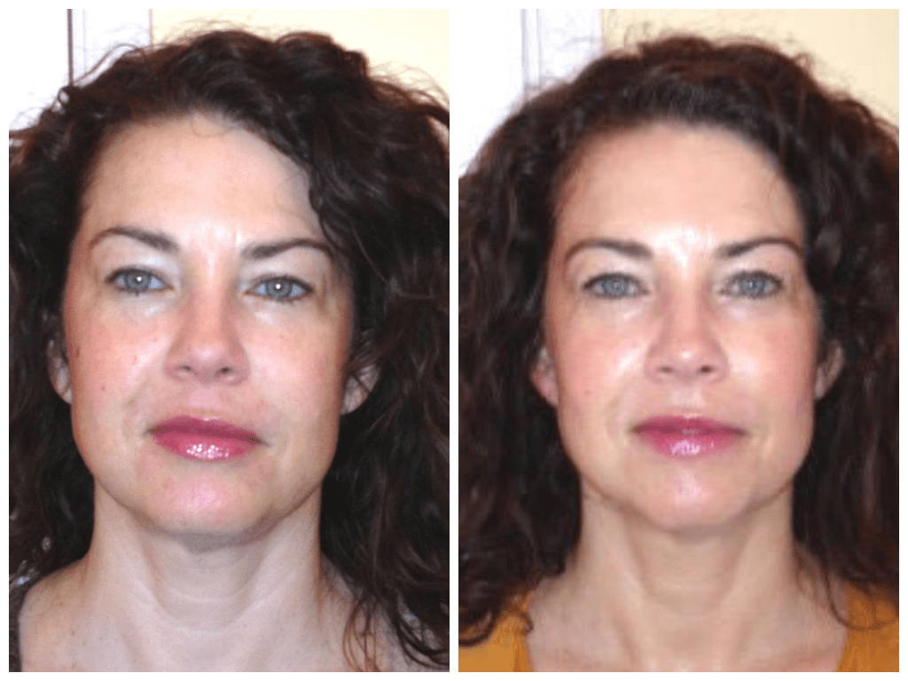 Age 42, before/after 10 sessions