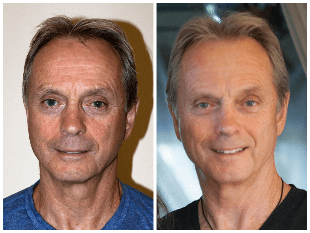 Age 67, before/after 10 sessions