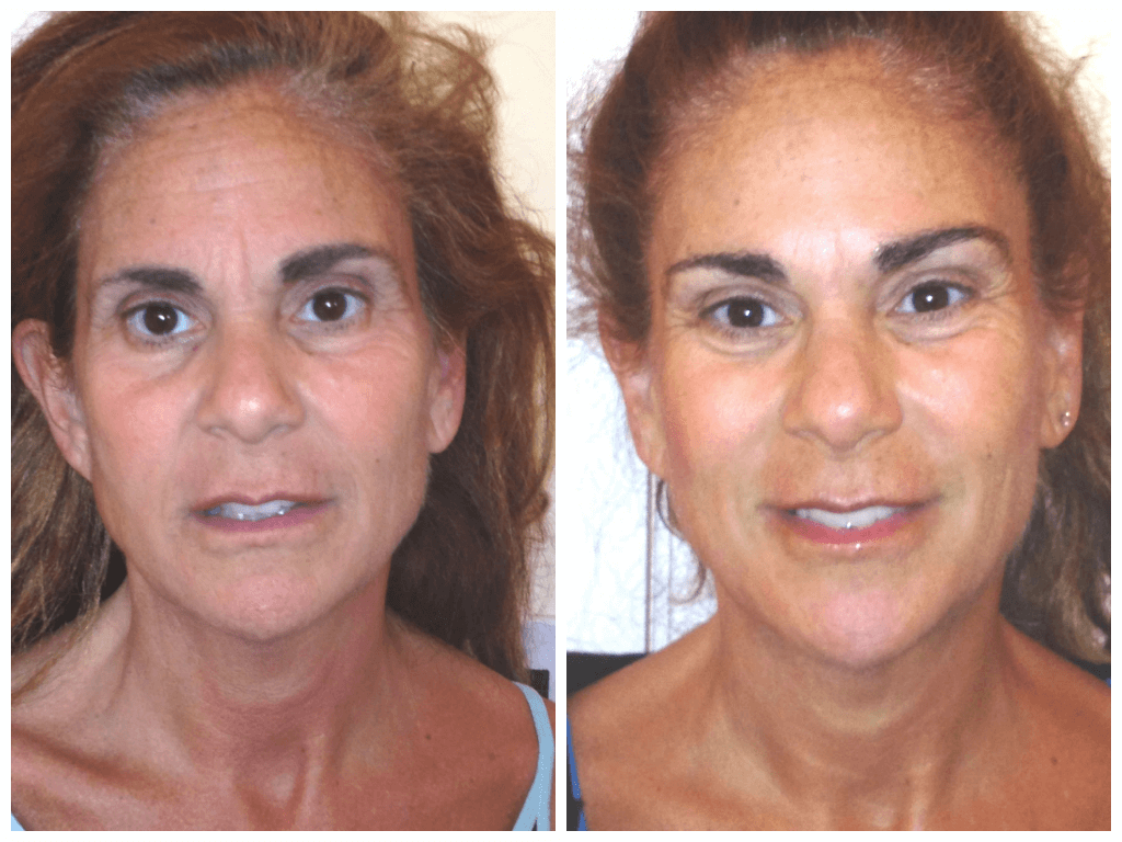 Age 52, before/after 8 sessions