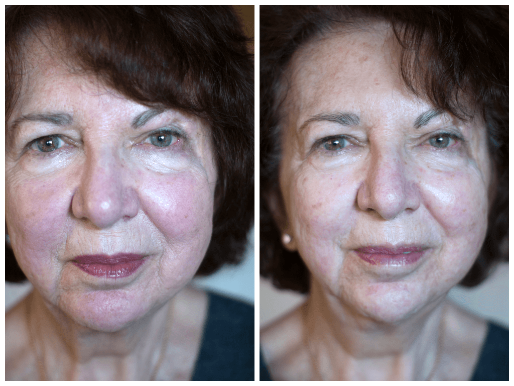 Age 72, before/after 1 session